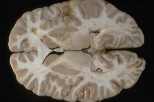 صورة المخ