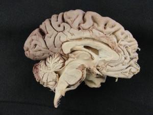 BrainMidsag